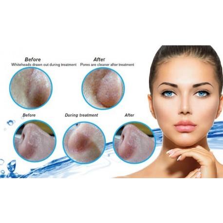 AquaGlo Rejuvenecimiento Líquido Facial